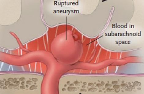 Ruptured aneurysm